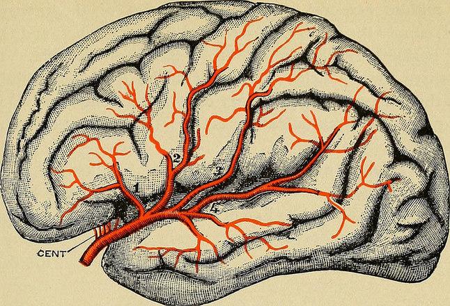 Já o AVC hemorrágico é provocado pela ruptura de uma das veias do cérebro, podendo causar danos cerebrais. A consequência é a perda de alguns movimentos e funções, que pode ser de maneira temporária ou permanente. Entre os fatores de risco estão hipertensão descontrolada, cigarro e obesidade