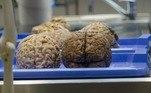 Desde o século 19, diversos cientistas buscaram encontrar respostas conclusivas sobre a possibilidade do cérebro de um homem ser diferente do cérebro feminino. Eles até tentaram, mas falharam. Pesquisas recentes apontaram diferenças sutis, mas que nunca chegaram nem perto de provar o que alguns desses pesquisadores queriam: que homens são mais inteligentes