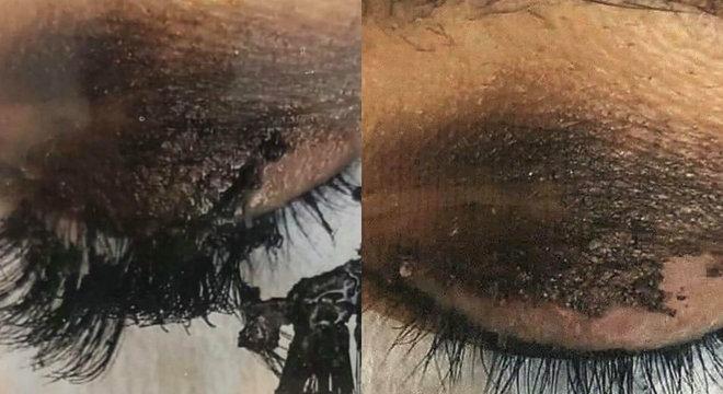 Micropigmentação e alongamento de cílios podem causar queimaduras