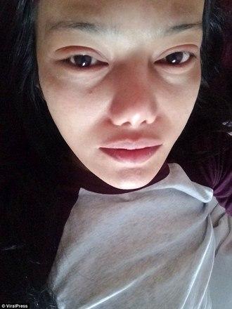 Mulher sofre por horas após colar cílios postiços com supercola (Crédito: Reprodução/Benyapa Supap)