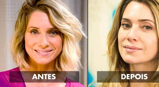 Cirurgia cosmética - antes e depois
