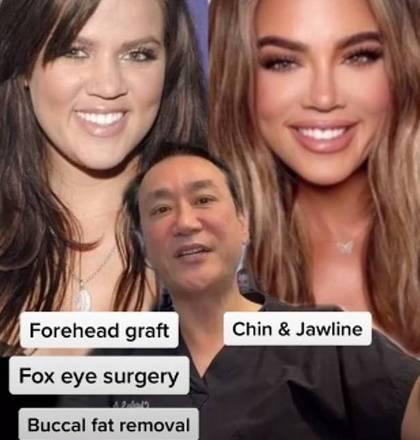Um cirurgião plástico de Beverly Hills, nos Estados Unidos, conquistou milhares de seguidores nas redes ao expor procedimentos estéticos que as celebridades não assumem. Dr. Charles S. Lee costuma mostrar fotos do antes e depois do rosto, e ainda detalha cada região modificada. Khloe Kardashian, de 36 anos, parece ser a campeã de transformações: 'Enxerto de testa, foxy eyes, incluindo uma elevação da têmpora e do canto da pálpebra, bichectomia, lipoaspiração de pescoço e área do queixo, cirurgia óssea ao longo da mandíbula e queixo, preenchimentos labiais e múltiplas rinoplastias.' Ufa, a lista é longa! Veja outras famosas