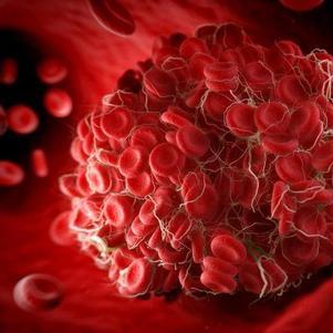 Coágulos podem provocar obstrução de artérias ou veias
