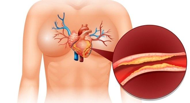 Colesterol LDL se acumula na parede das artérias ao longo da vida