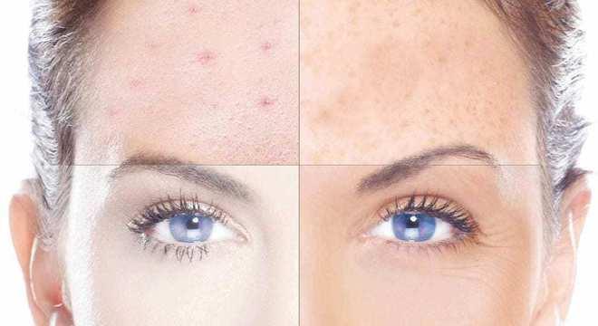 Como cuidar da pele à noite- aprenda a fazer uma boa rotina de cuidados