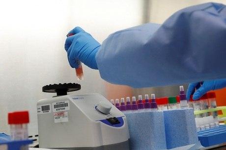 Idosa é primeira vítima fatal do coronavírus na Rússia
