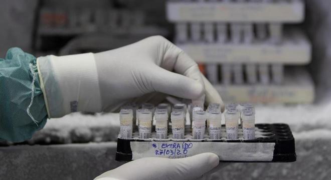 Iniciativa deve acelerar compra de itens necessários para realização de testes