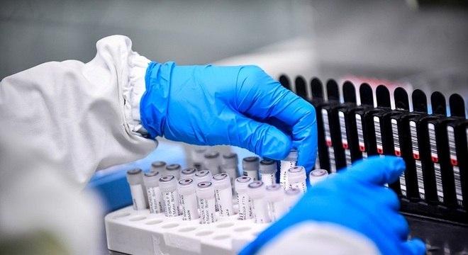 Ampliação de testes segue recomendações da OMS