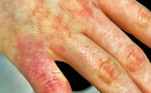 De acordo com o estudo, com base em exames de sangue e pele, há dois elementos que levam ao sintoma: uma proteína antiviral chamada interferon tipo 1 e uma espécie de anticorpo que ataca erroneamente as células e os próprios tecidos, além de invadir o vírus