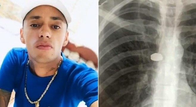 Cozinheiro de 32 anos ficou com uma bala alojada próximo ao coração
