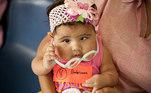 criança-bebê-visão-estrabismo-óculos-oftalmologista
