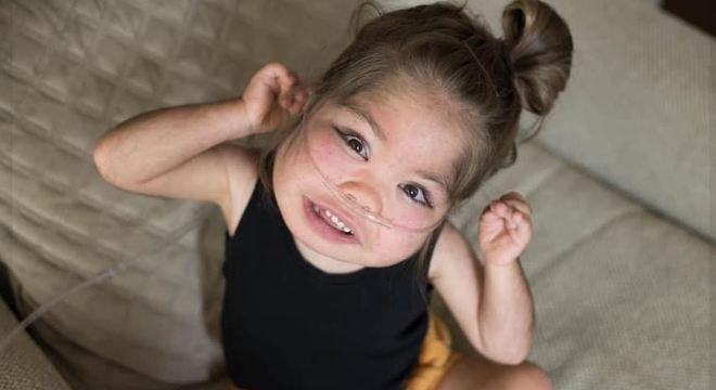 Emmett é uma criança que nasceu com doença rara e conta com ajuda de jovens