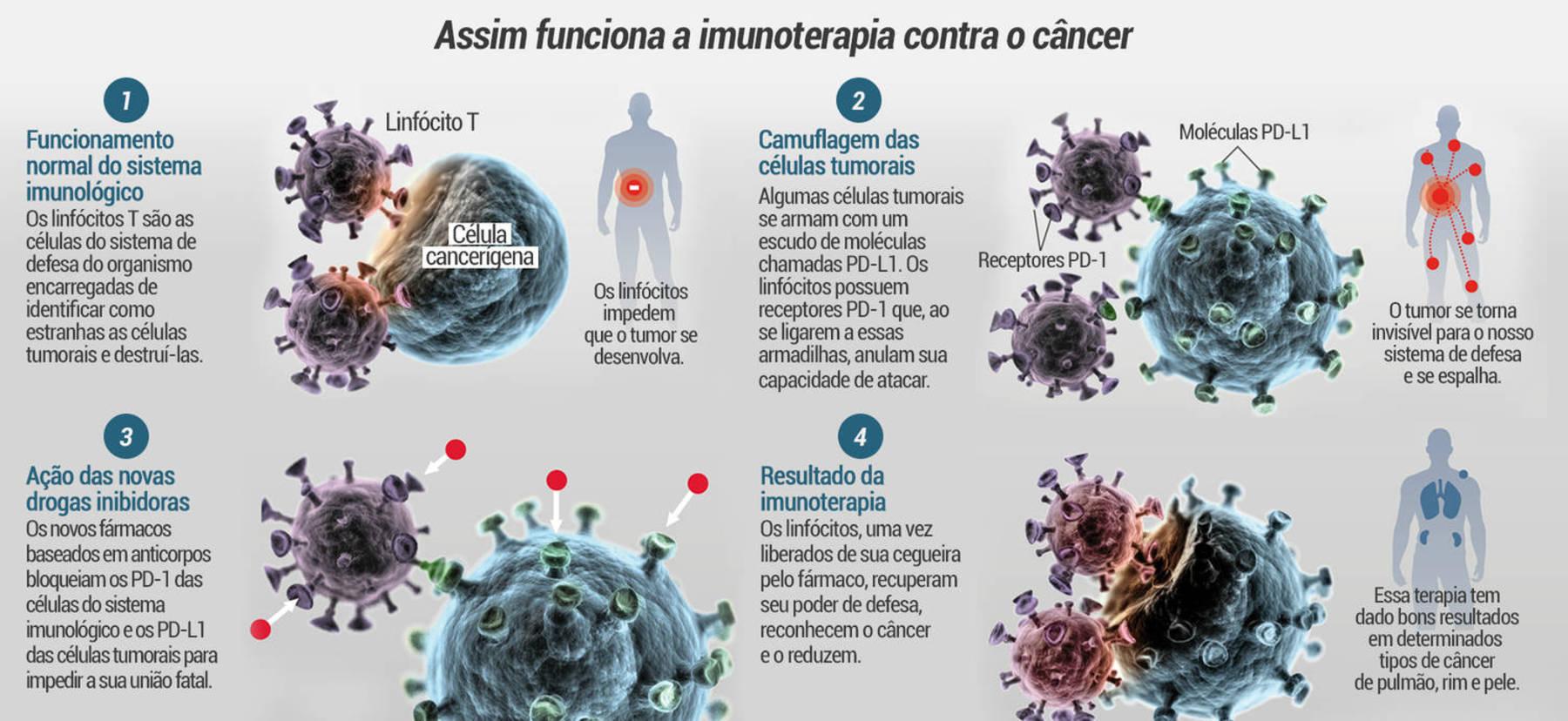 https://img.r7.com/images/cura-do-cancer-r7-estudio-infografico-imunoterapia-11112019145249495