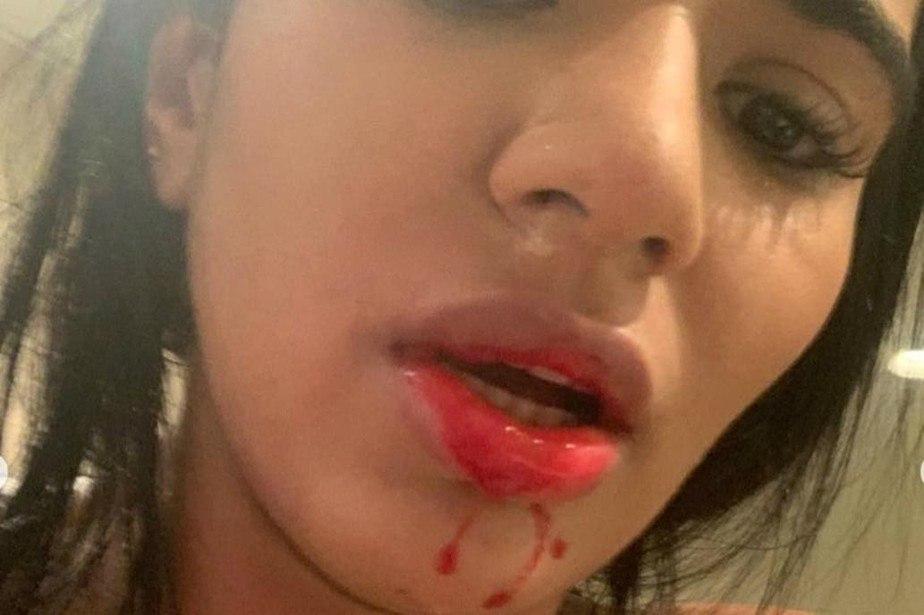 Daniela Cortéz postou várias fotos com o rosto sangrado. Acusando Villa de agressão
