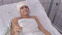 Jovem escalpelada será submetida a cirurgia de reconstrução de pálpebras (Folha de Pernambuco)
