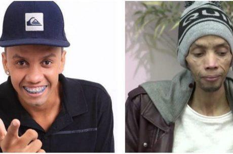 Deivison Kellrs: cantor lutava contra câncer no fígado