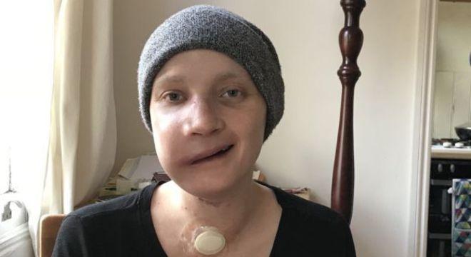 Resultado de imagem para Jovem fotografa seu rosto todos os dias após passar por reconstrução facial e registra recuperação