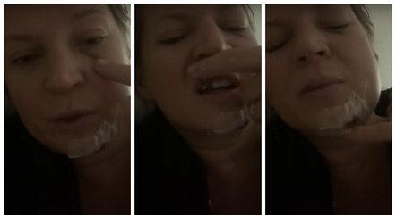 Na imagem, hematomas no rosto de Joice