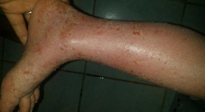 A dermatite atópica se manifesta por meio de lesões avermelhadas na pele