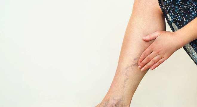 Dermatite - o que é, sintomas, tipos doença e como tratar