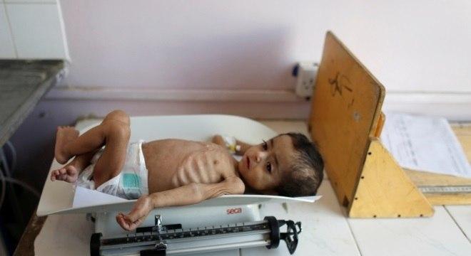 Criança com desnutrição grave no Iêmen, que enfrenta guerra há 4 anos