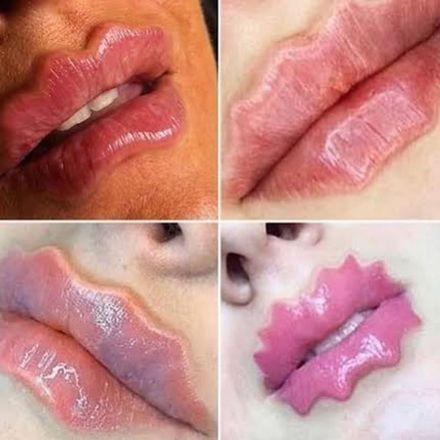 Segundo a dermatologista Fernanda Nichelle, a tendência é preocupante, porém possível de ser realizada. 'A pele se trata de um tecido mole e moldável. O contorno é moldado através de uma agulha, que dá o efeito de arqueamento no lábio superior'