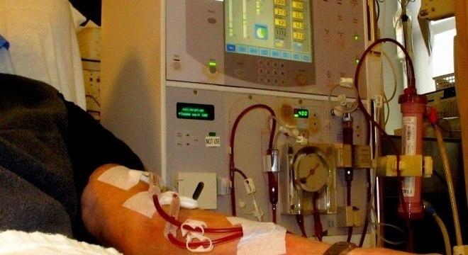 A diálise é feita por máquina que substitui o rim, removendo as toxinas do sangue