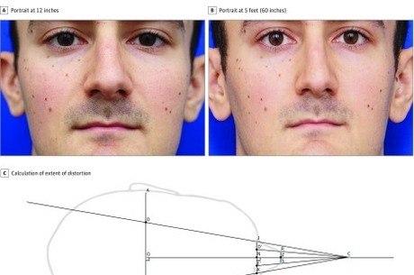 """Foto retirada do estudo """"Distorção nasal em fotos de curta distância: o efeito selfie"""""""
