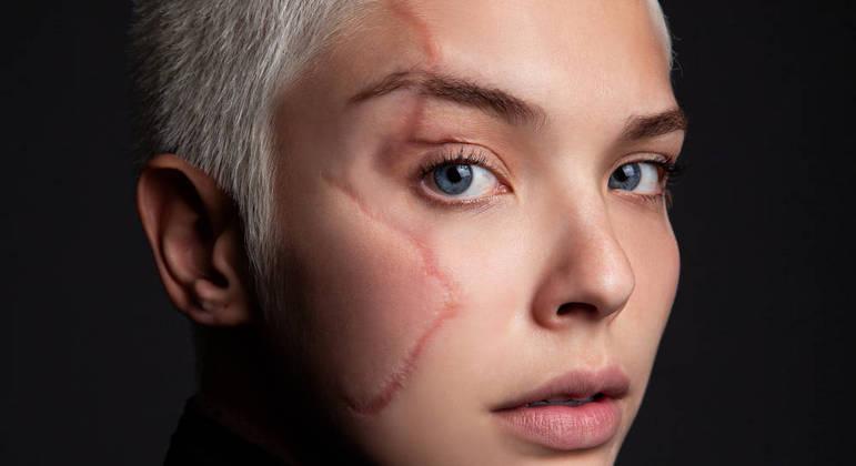 Giulia Dias aprendeu a conviver com suas cicatrizes e admirá-las
