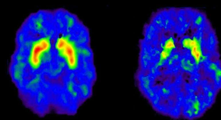 Dopamina - função, efeitos e como aumentar a produção no organismo