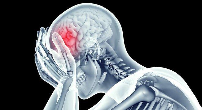 Alguns tipos de dores de cabeça são regulares, acometendo os pacientes no mesmo período do ano