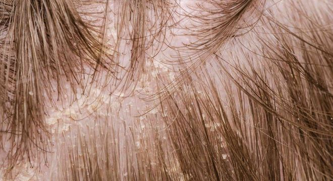 Dormir com o cabelo molhado faz mal? Mitos e verdades