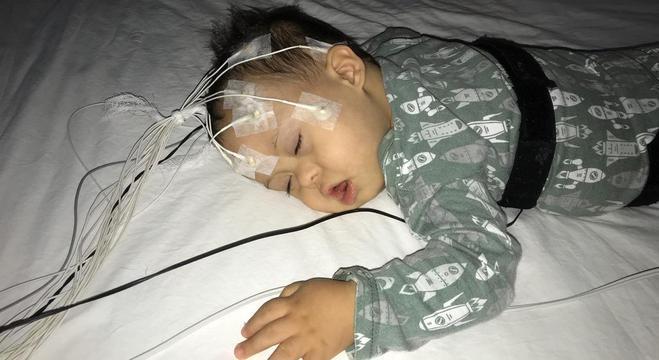 Apneia compromete qualidade do sono das crianças
