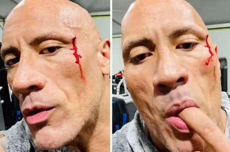Ator é atingido por corrente no rosto