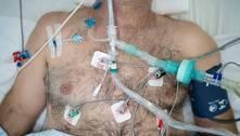 Sedativos para intubar pacientes com covid-19 estão em falta no RJ
