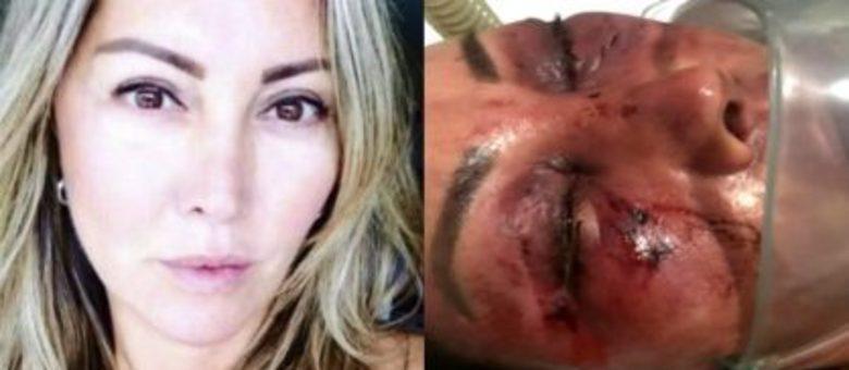 Resultado de imagem para Empresária agredida no primeiro encontro é alerta para mulheres