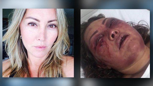 Elaine Caparróz foi desfigurada em seu primeiro encontro  (R7)