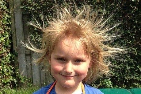 Energia estática também age sobre os cabelos, causando os arrepios