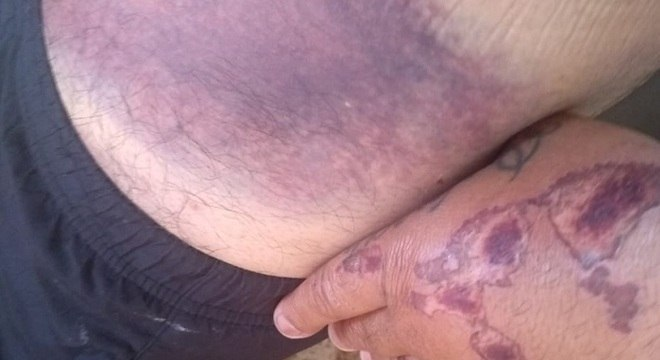 Após o acidente, Jefferson teve marcas de coágulo sanguíneo na perna