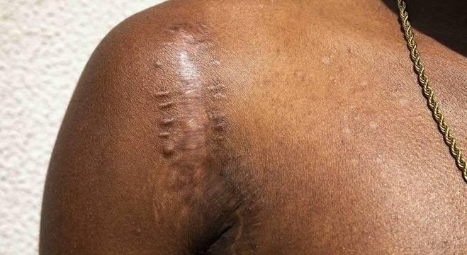 Cicatriz do golpe de machado não incomoda José Vitor. Mas o racismo, sim