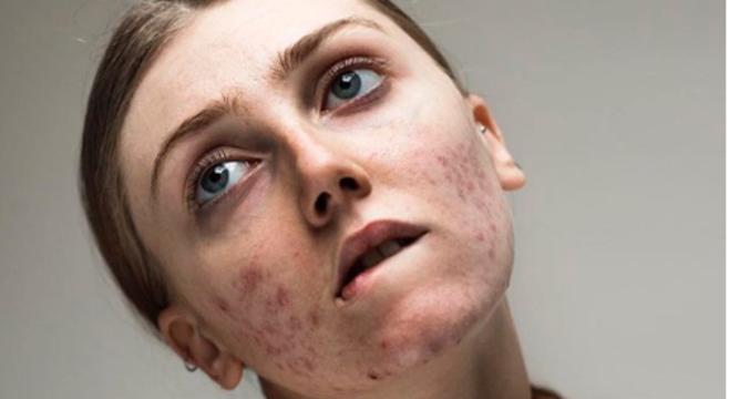 """A modelo Louisa Northcote, 21, criou o movimento """"liberdade para as espinhas"""""""