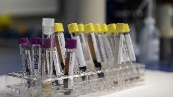 __Brasil tem o maior nº de casos de HTLV do mundo, o primo do HIV__ (Reprodução)