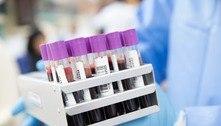 Pandemia causa queda de 27 mi procedimentos de saúde