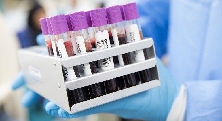 Exame sorológico não deve ser usado para testar proteção conferida por vacina