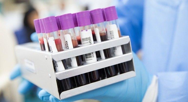 Em testes anteriores, exame teve alta precisão na identificação de tumores em estágio inicial