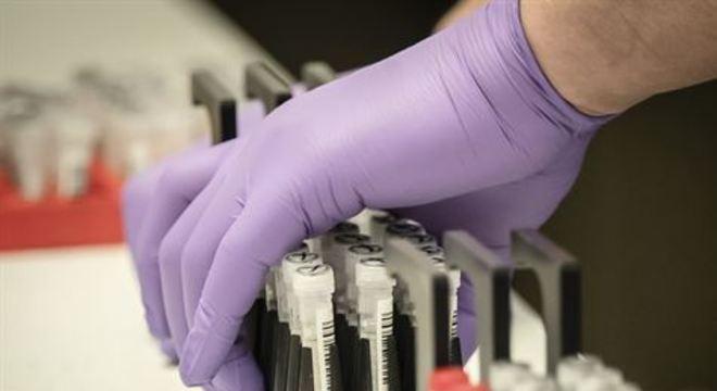 Experimentos devem começar nesta semana e podem durar até 40 dias. Testes poderão dar diagnósticos em minutos