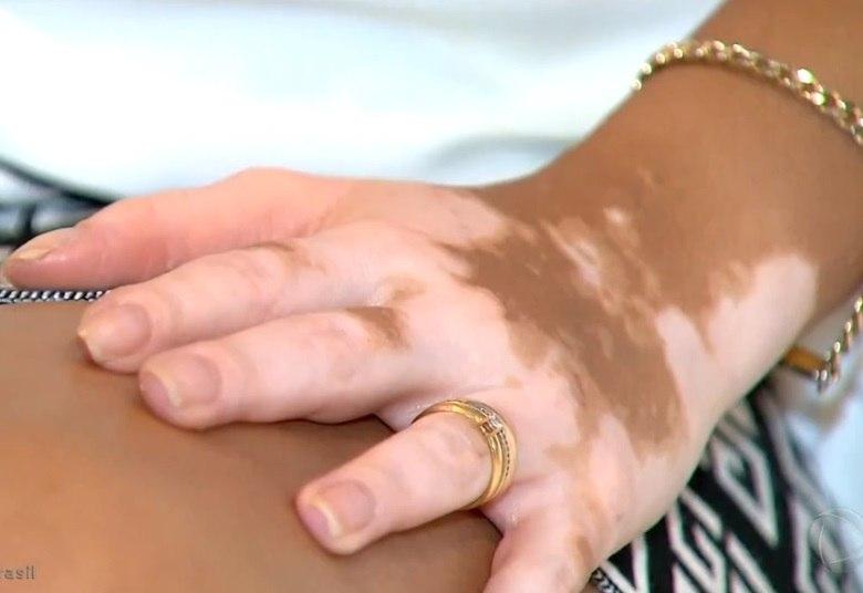 Causas em portugues vitiligo