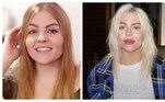 Luísa Sonza mudou muito desde que apareceu a primeira vez na internet, com os vídeos no YouTube. Além de deixar os fios de cabelo mais claros, a cantora fez preenchimento labial— o único procedimento estético, segundo ela