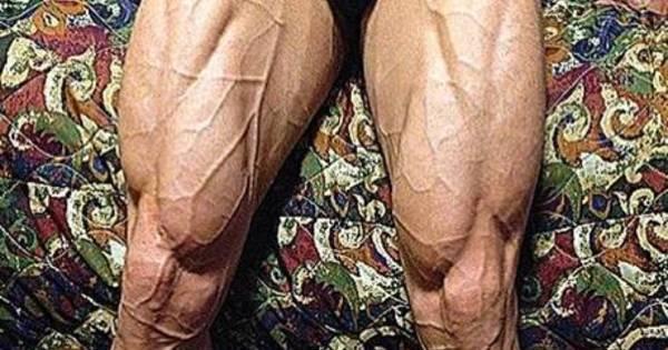 O que causa dor que irradia para baixo libras da perna para o pé