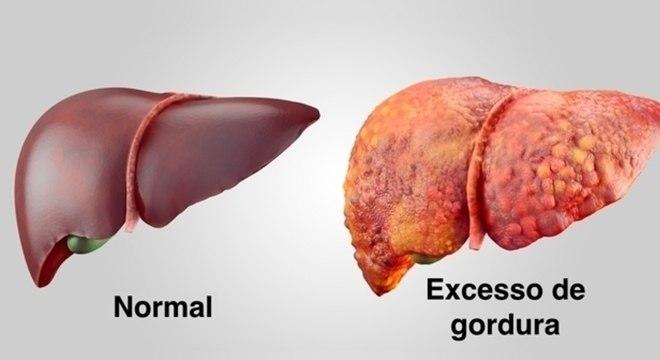 Fígado - Características e funções